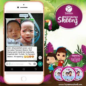 ruam bayi, masalah kulit anak